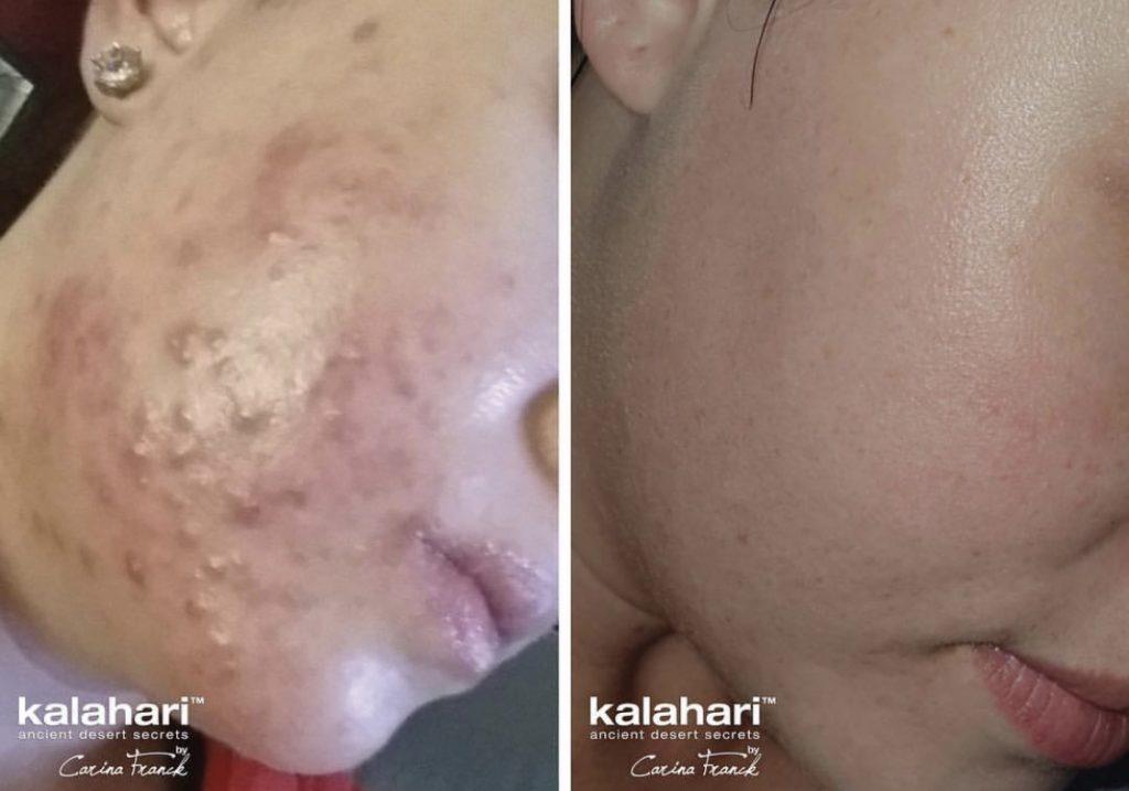 Kalahari Lifestyle Adult Acne Treatment