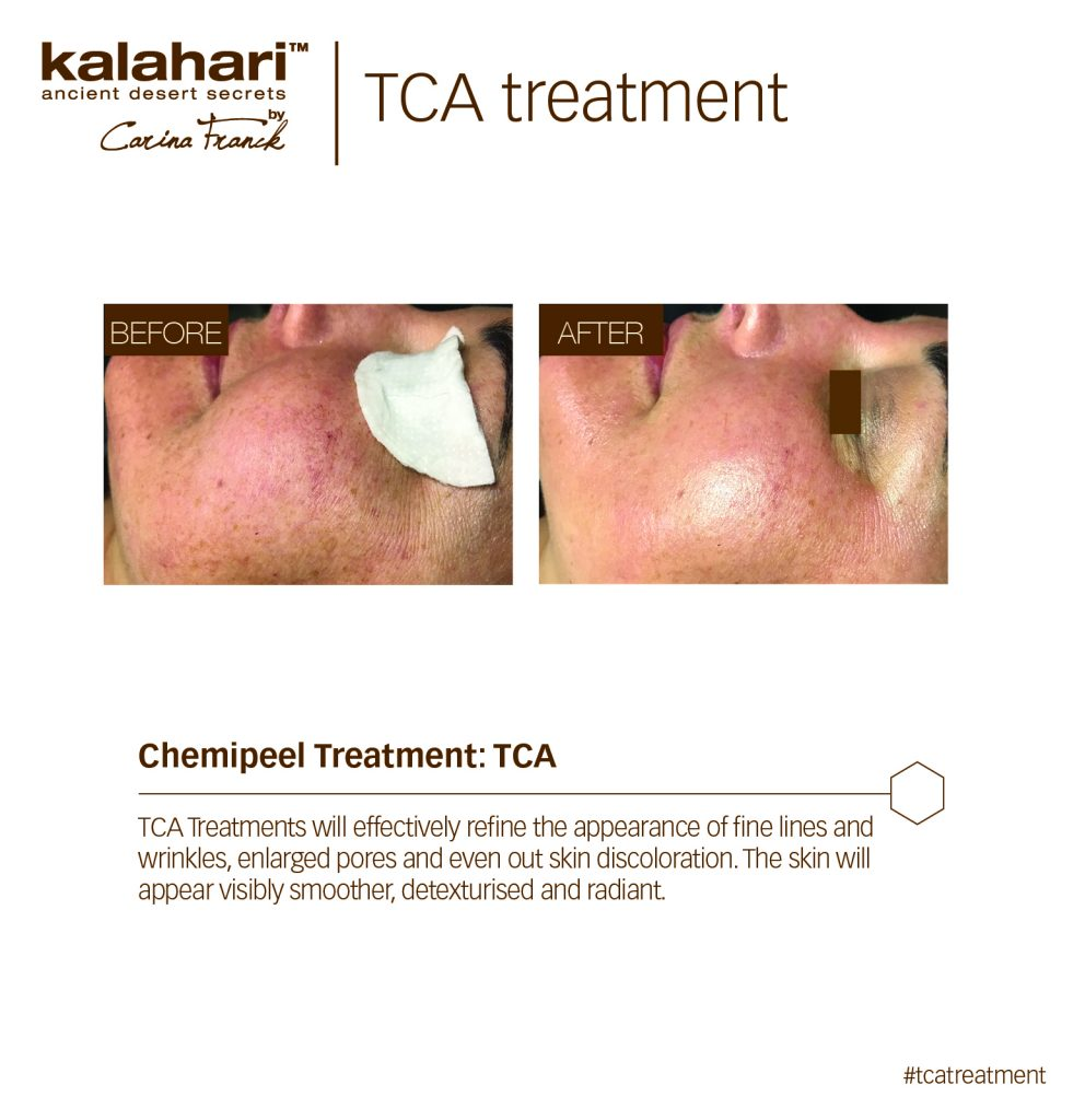 Kalahari Treatment